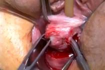 Privat: Caz de IUE, uretrocel. Prolaps de bolta vaginala (defect apical).